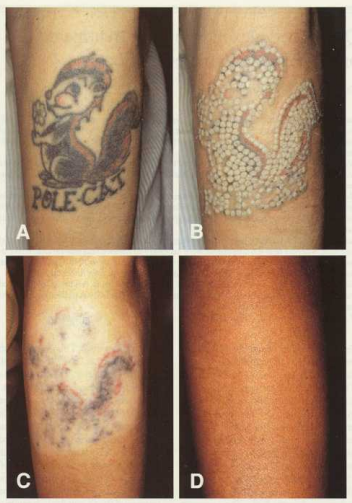 Tattoo Removal (With images) | Laser tattoo, Tattoo ...