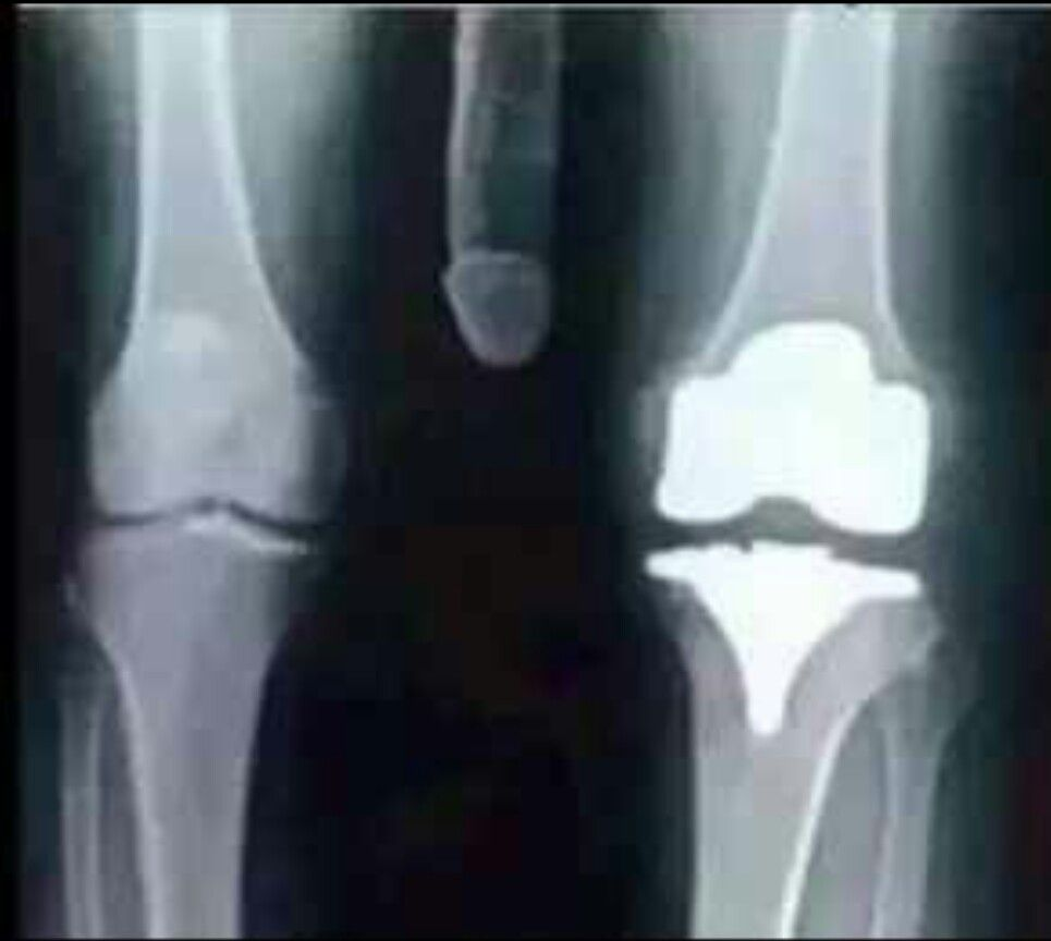 Funny Total Knee X Ray