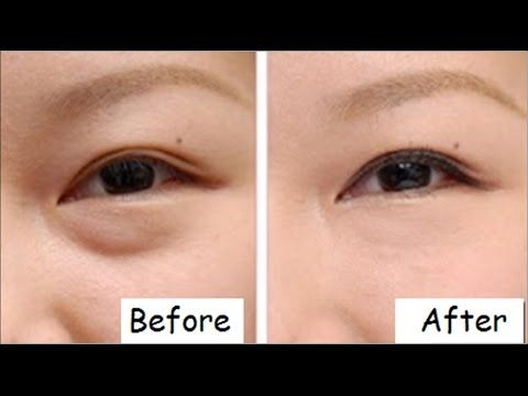 How To Get Rid Of Eye Bags Permanently In 3 Months Naturally