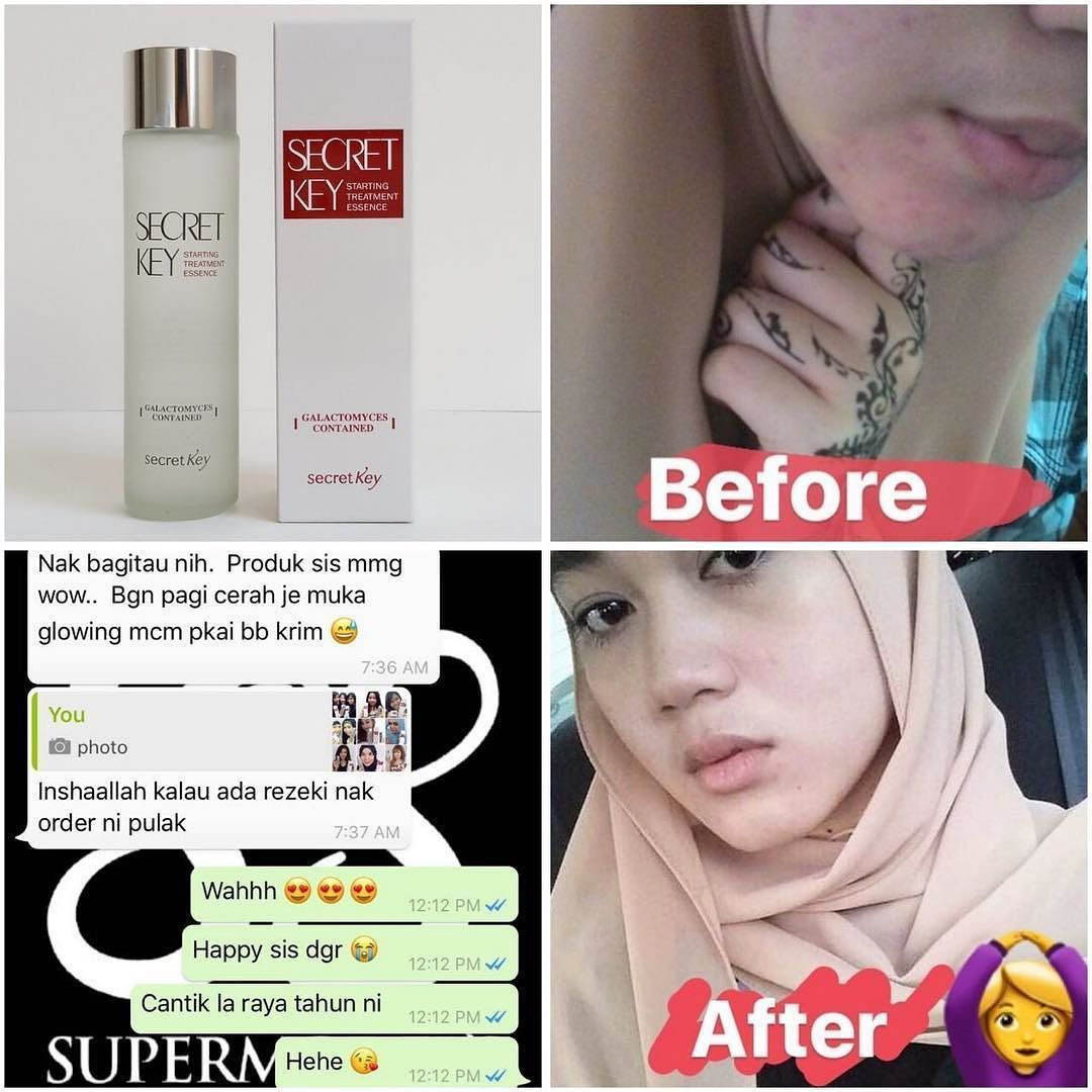 Reviewflawless with and without makeup get acne free and glowing