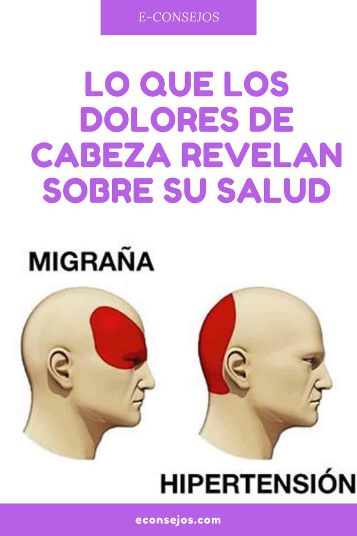 Qué tipo de dolor de cabeza está encima de la cabeza