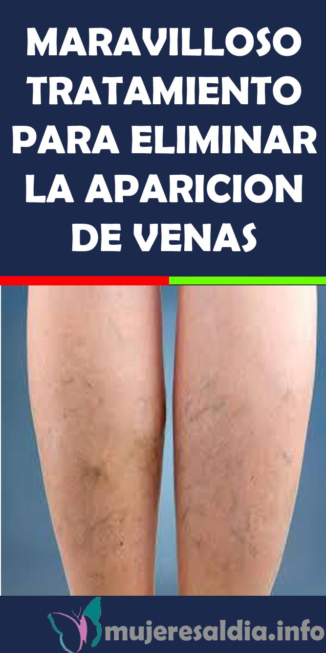 aparicion de venas en las piernas