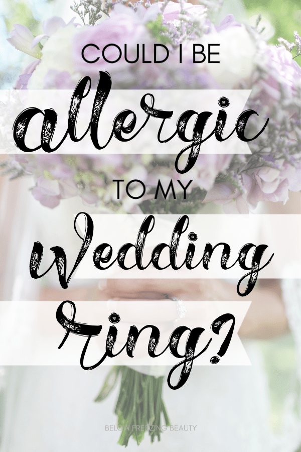 Help! I'm Allergic To My Wedding Ring (With images