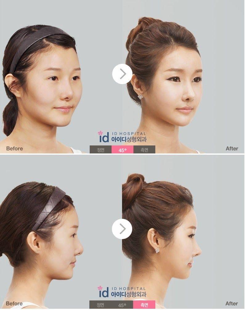 Ideal korean nose contourhighlight pinspo nose