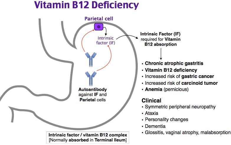 vitamin b12 deficiency. pernicious anemia. in vitamin b12, Skeleton