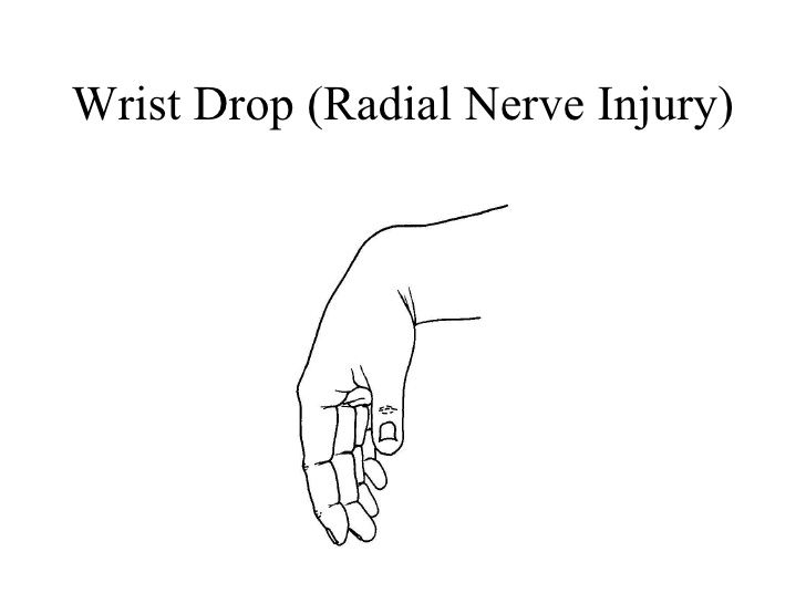 Wrist Drop Radial Nerve Injury Radial Nerve This Or That