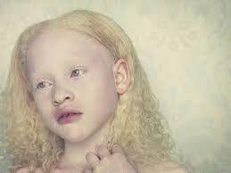 Resultado de imagen de albinos morenos
