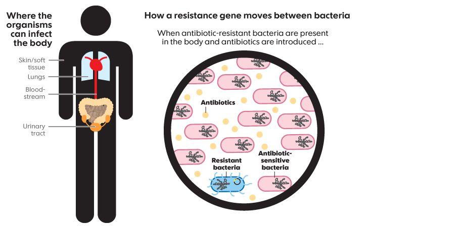 Deadly 'superbugs' invade U.S. health care facilities ...