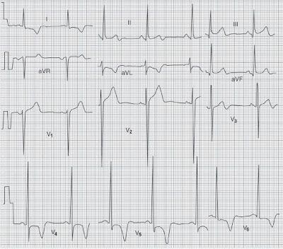 Study Medical Photos Left Ventricular Hypertrophy LVH ECG Study