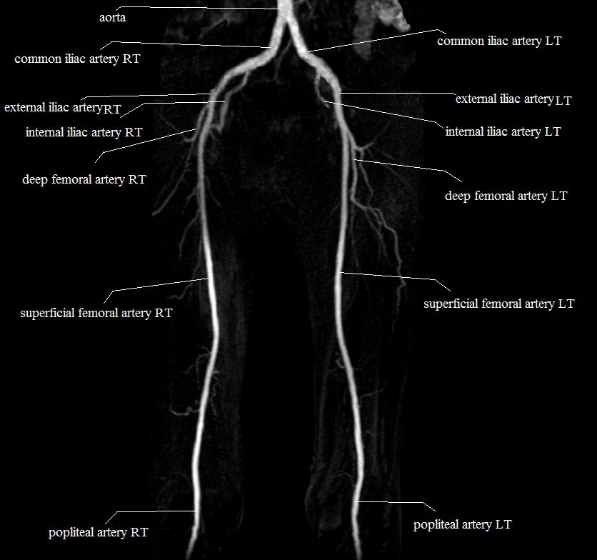 Scotty dog X-Ray anatomy,sagitla lumbar spine x-ray anatomy scotty ...