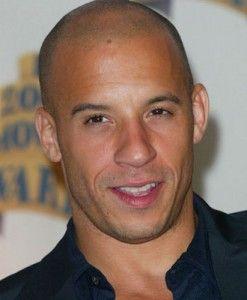 Sexy hair styles for balding men