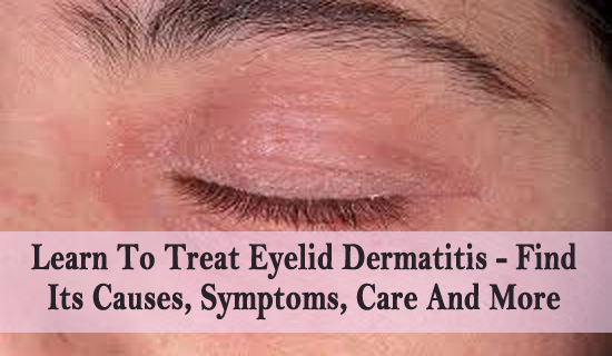 7984742b10a Learn To Treat Eyelid Dermatitis - Find Its Causes, Symptoms, Care And More  If