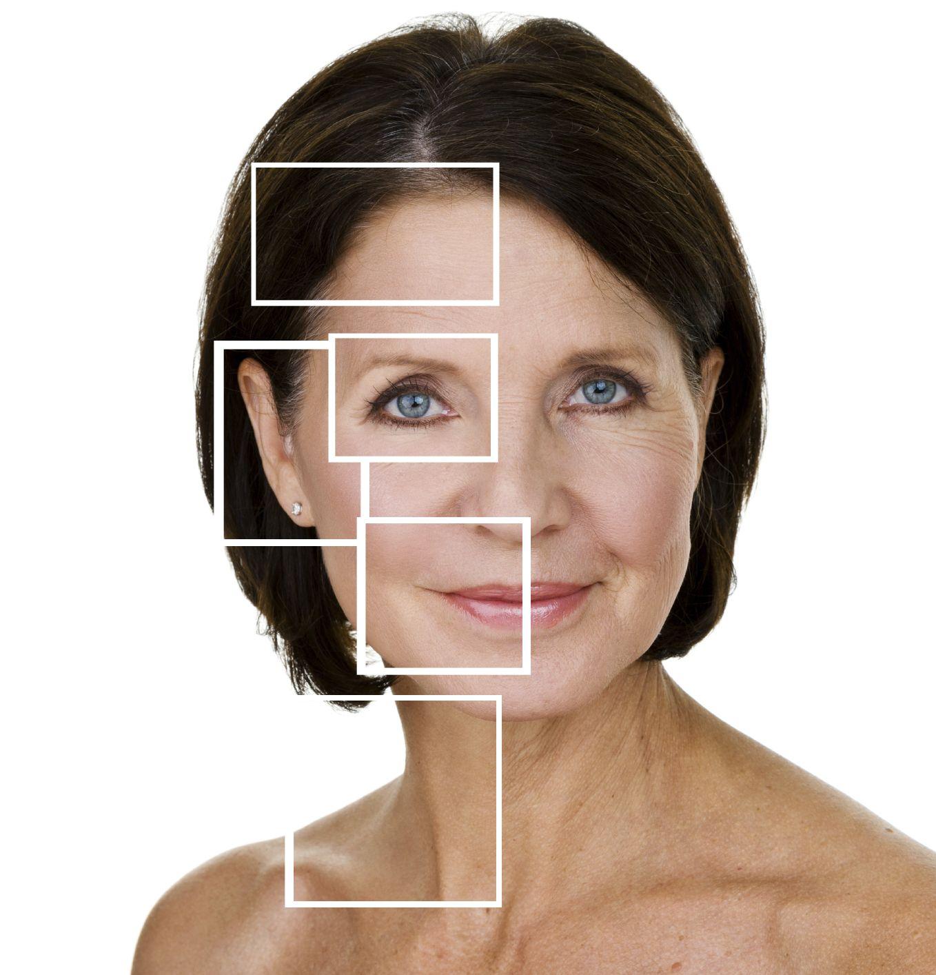 Bellafill Facial Filler Approved as 5Year Filler News