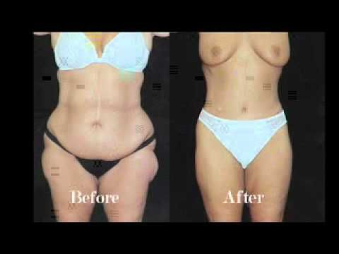 Body Lift Plastic Surgery After Weight Loss Before After Pictures
