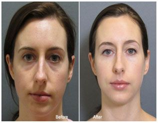 Eye filler injections / Mary ice