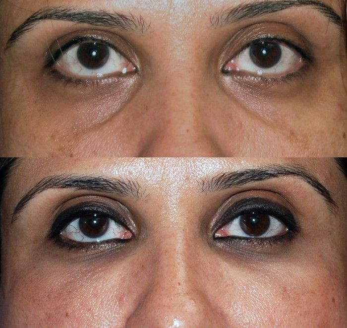 sunken eyes treatment - 700×661