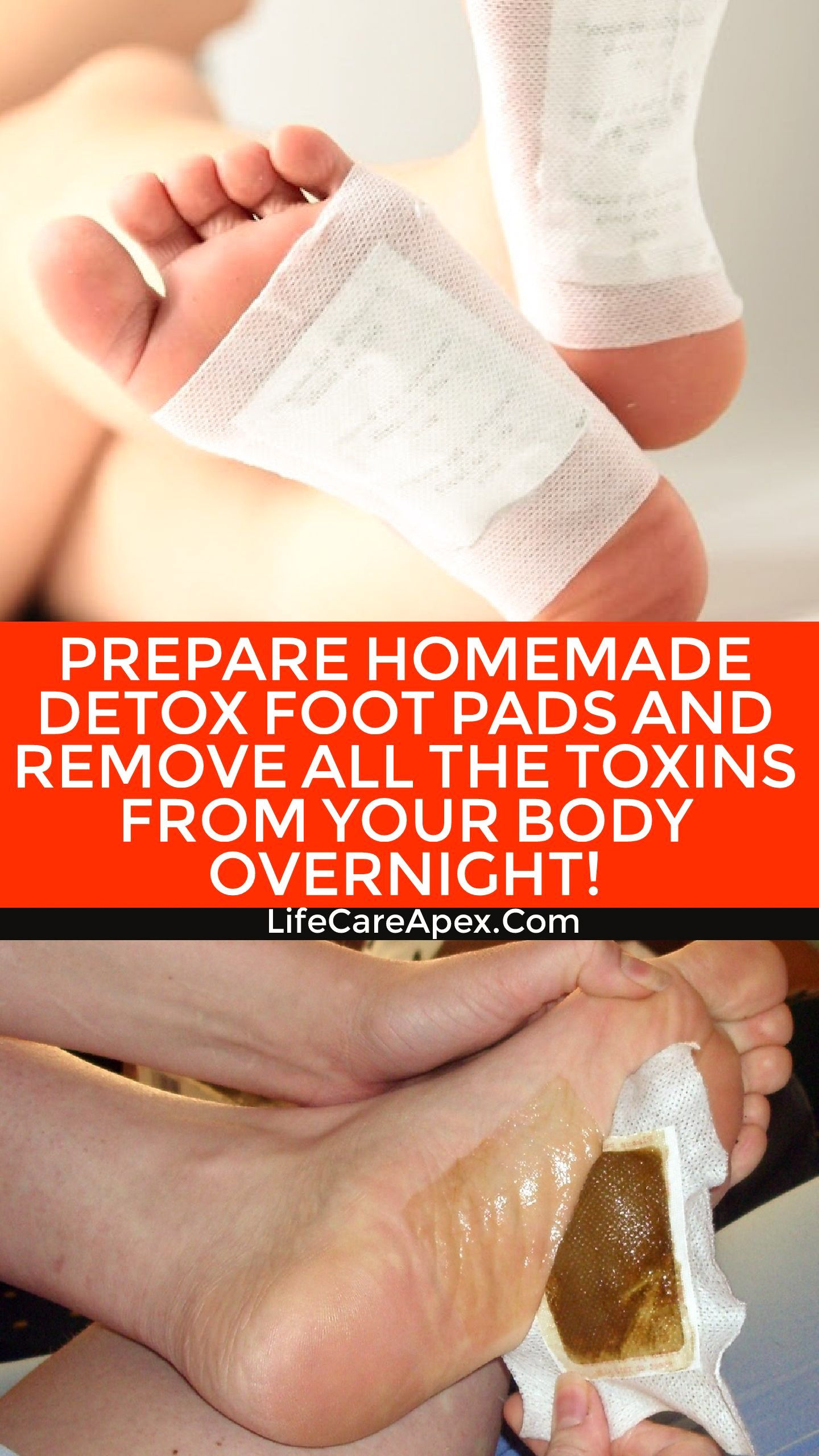 Prepare Homemade Detox Foot Pads And Remove All The Toxins From Your Body Overnight Foot Detox Pads Homemade Detox Detox Pad