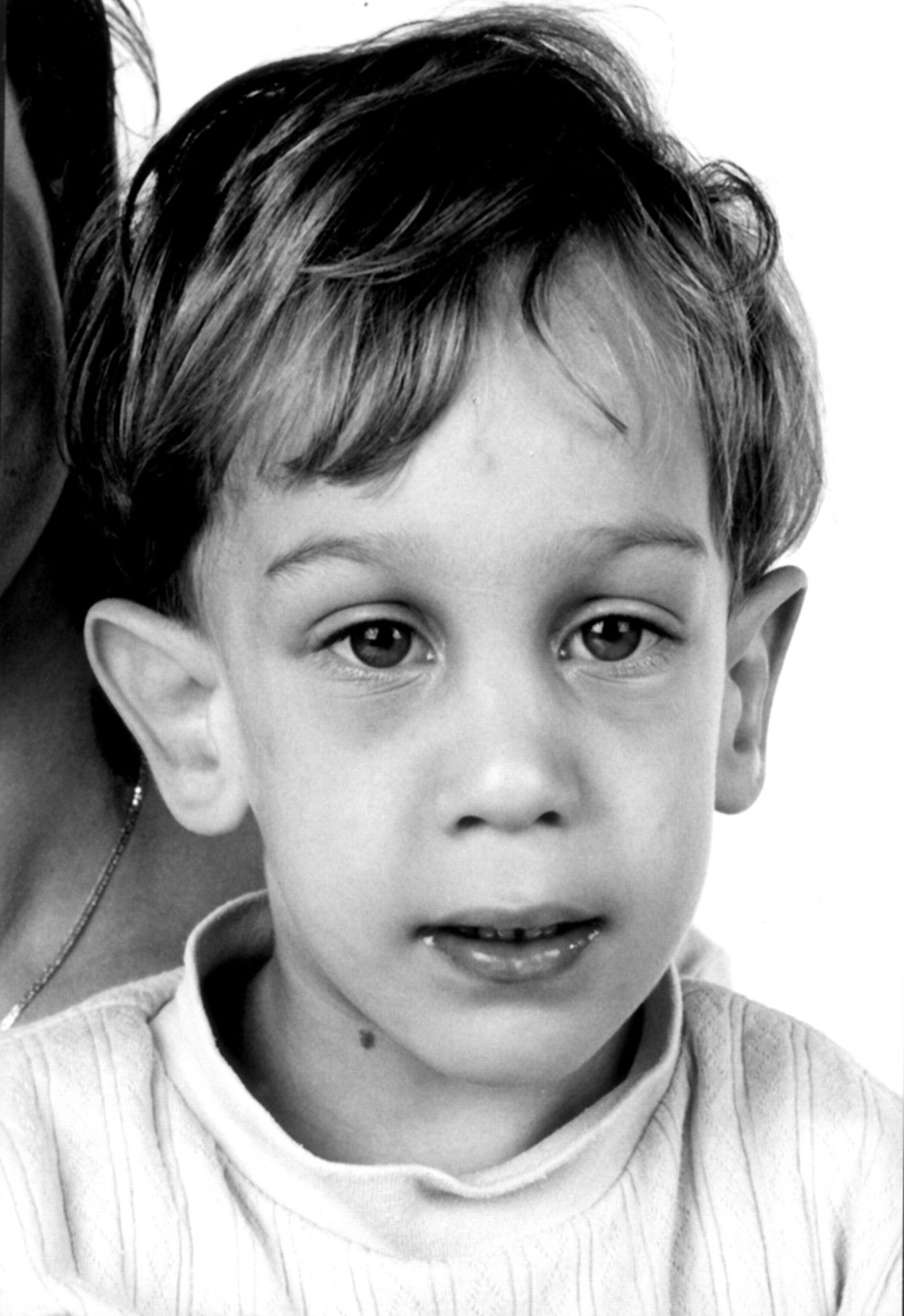 Fragile X Syndrome Symptoms Causes Diagnosis And Treatment