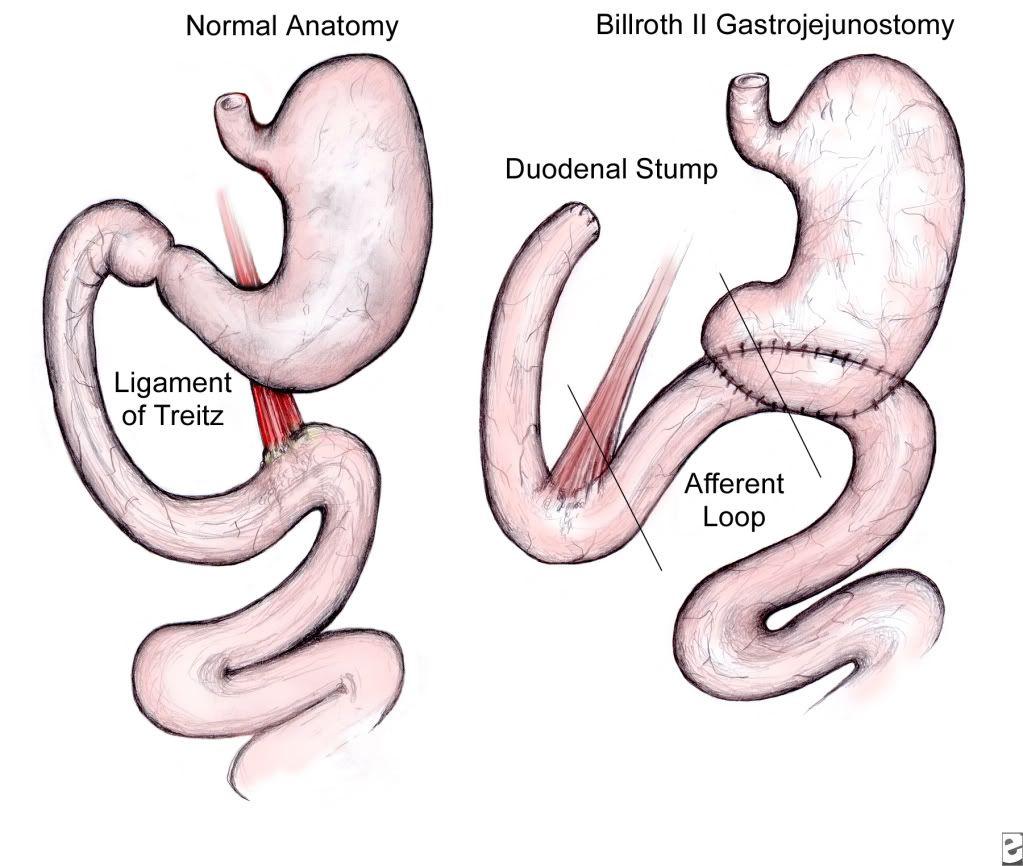Billroth Ii Surgery Is The Way Pinterest Radiology