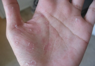 causes of dry peeling skin on hands and feet