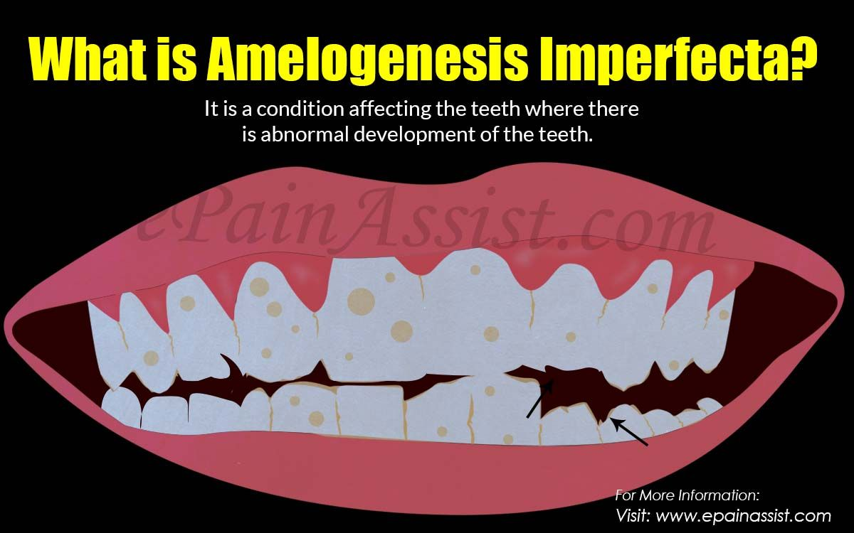 What Is Amelogenesis Imperfecta Oral Health Health Center Oral