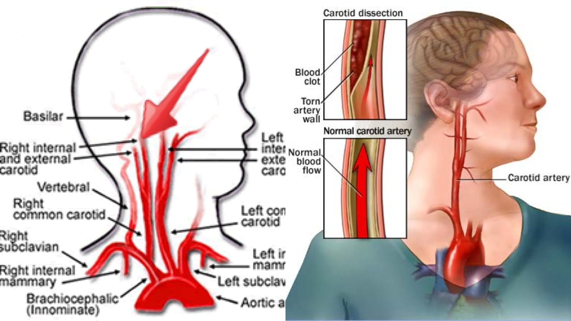 Internal Carotid Artery What is, Where is it, What does Dissection ...