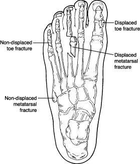 Toe And Metatarsal Fractures Broken Toes Foot Remedies Swollen Feet Remedy Swollen Feet