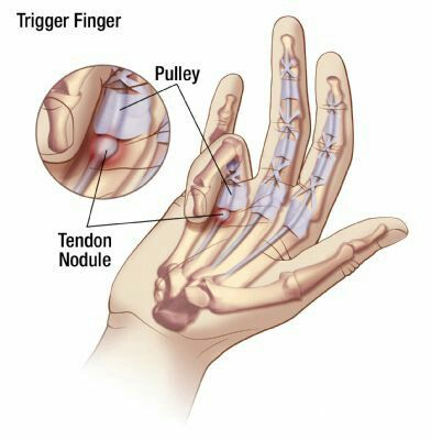 Trigger Finger Note Inflammatory Node Is At Mcp Joint Note
