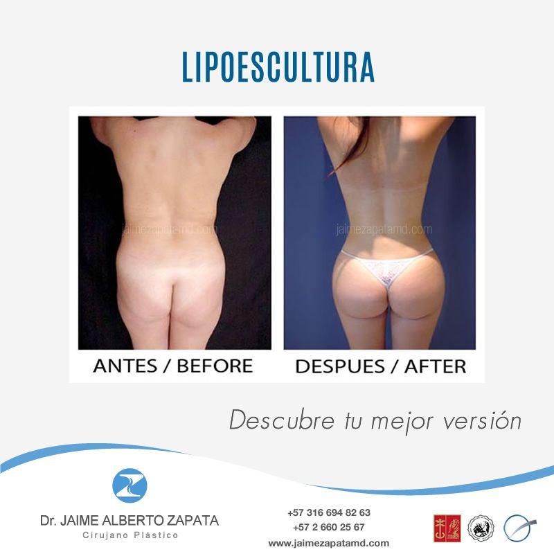 Auriculoterapia para bajar de peso antes y despues lipo