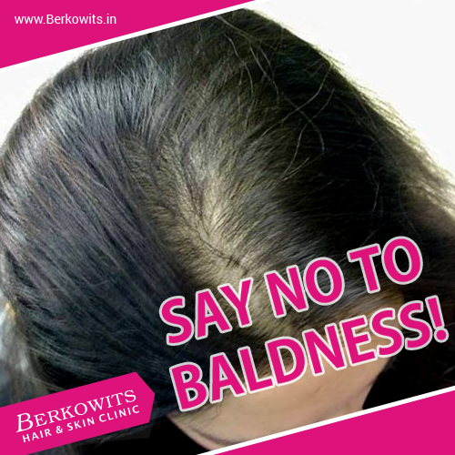 Say no to Baldness !!!! at : http://www.berkowits.in