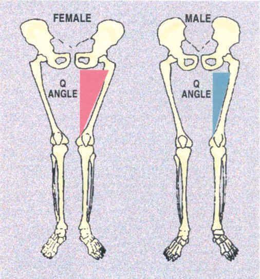 Knee Pain - Q Angles