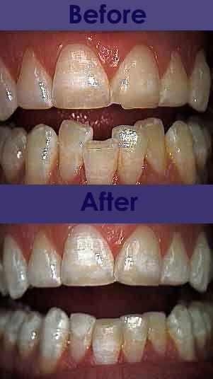 valium dosage before dental procedure