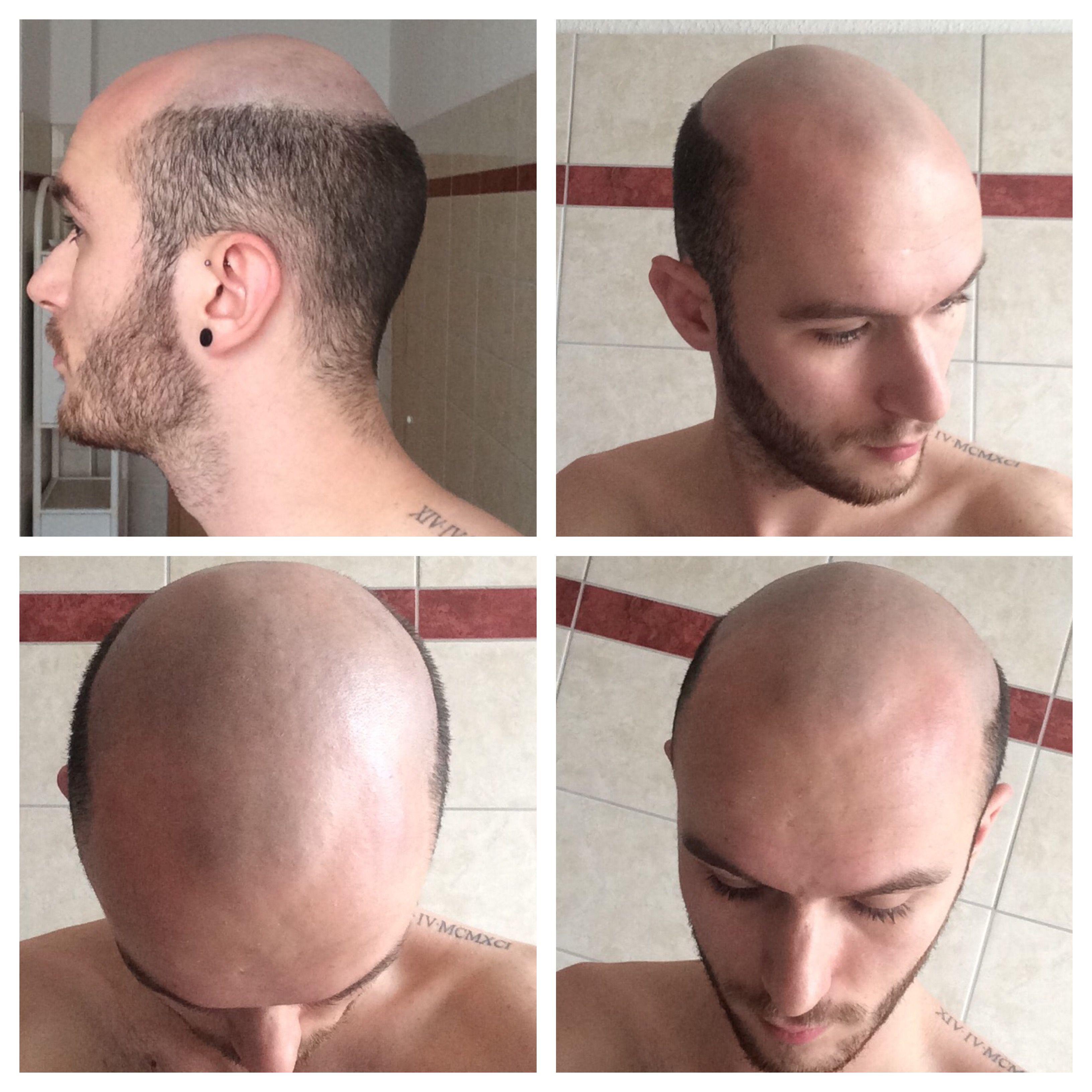 Balding head shave