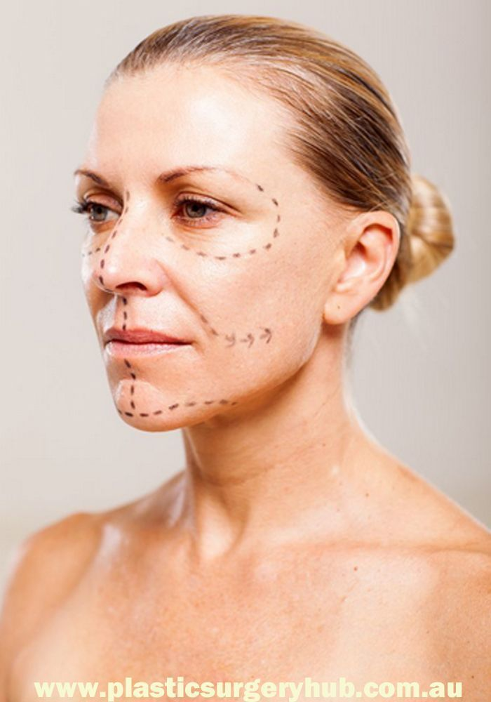 Facelift is the common name for rhytidectomy, a cosmetic surgery procedure.   Facelift may also refer to: