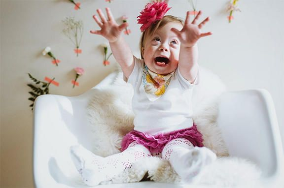 Special Miracles - Down syndrome | 21 Reasons - A Perfect Extra Chromosome