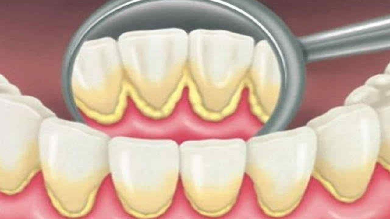 How To Remove Dental Plaque In 5 Minutes Naturally Without