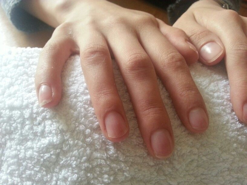 No dmg ti nail bed after acrylic removal | My work | Pinterest ...