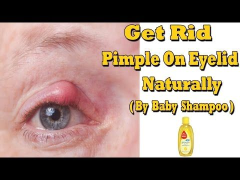 New post on my blog:  How To Get Rid Of Pimple On Eyelid Naturally (By Baby Shampoo) https://t.co/xXK0WQlrO3