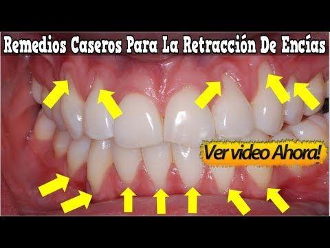 21 Ideas De Boca Salud Dental Salud Bucal Remedios