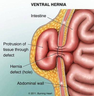A ventral hernia occurs when a weak spot in the abdomen enables ...