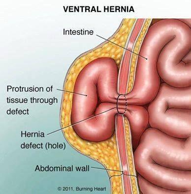 A ventral hernia occurs when a weak spot in the abdomen enables abdominal tissue or an organ (such a