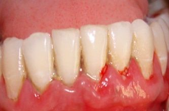 what causes gum abscess periodontal abscess pyorrhea
