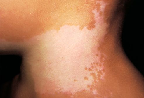 vitiligo is a serious skin discoloration problem which needs, Skeleton
