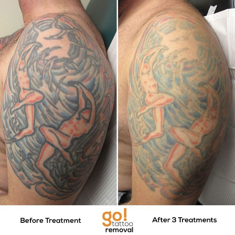 This Large Piece Is Showing Substantial Fading After 3 Laser Tattoo