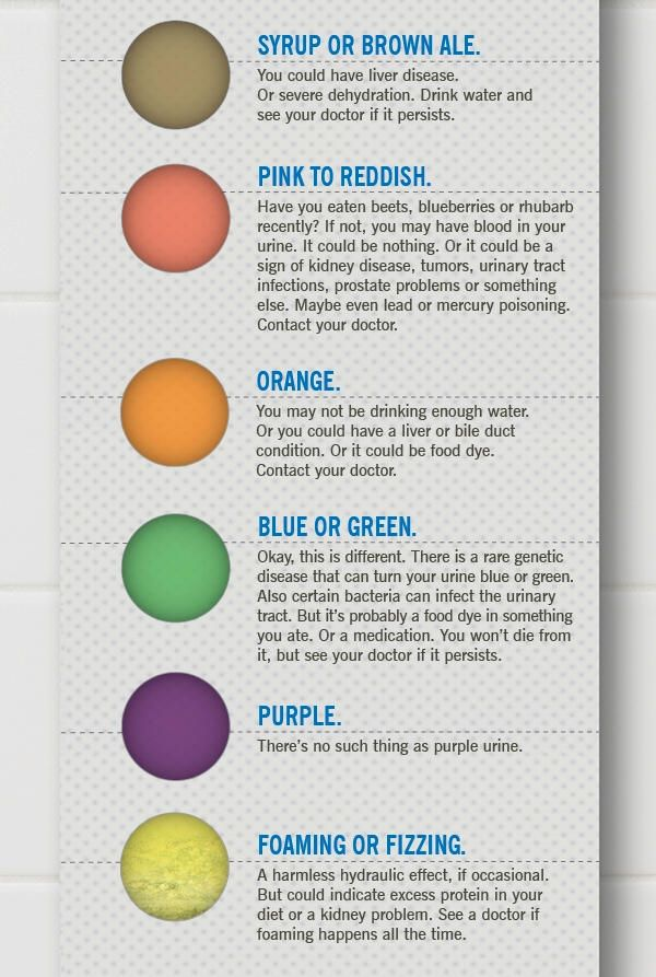 What The Color Of Your Urine Says About You Infographic