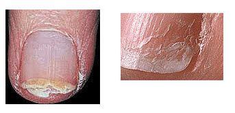 Splitting Layers & Peeling Layers   Nails   Nail conditions, Peeling ...