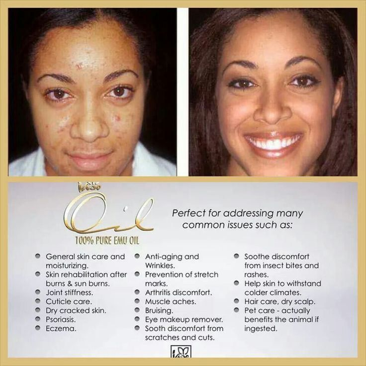 The Oil helped clean her skin up