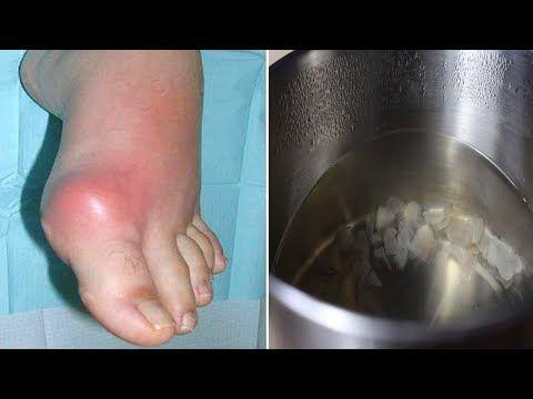 varicoză vindecată