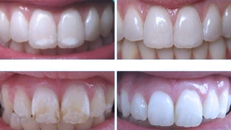 How to remineralize regrow tooth enamel healthy pins