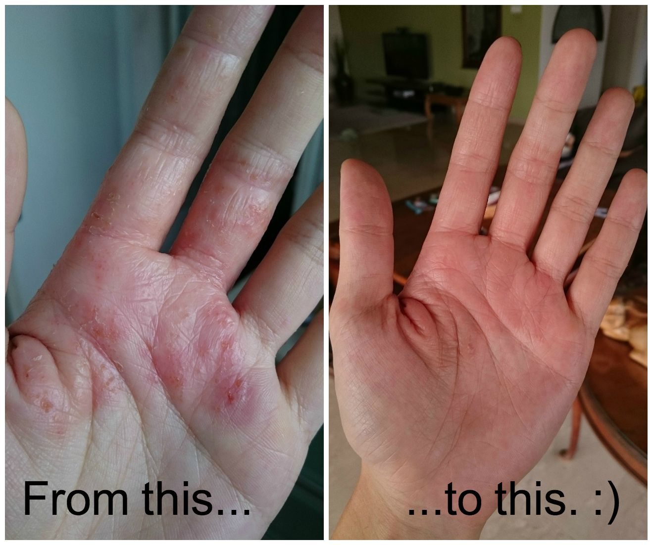 I Fixed My Eczema With Fish Oil With Images Eczema On Hands